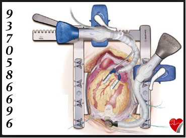 Off-Pump Heart Surgery in India